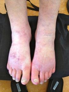 Feet after PEA treatment: less edema, less pain, less discoloration