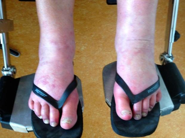 CRPS feet before treatment