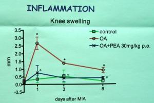 Artrosi: PEA riduce il gonfiore e il dolore