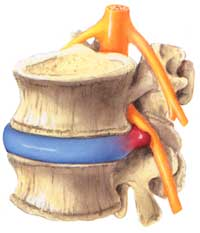 PEA vermindert Schmerzen bei Bandscheibenvorfall