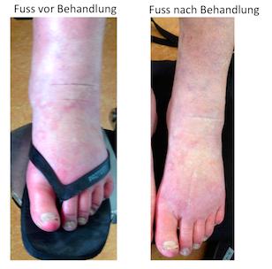 Voeten voor (links) en na (rechts) behandeling