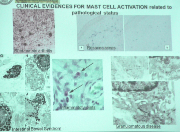 Mast cells in various pathology, presented by prof Luvone