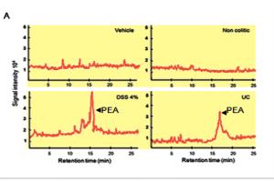Darmweefsel bij colitus ulcerosa produceert PEA