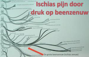 Bij ischias ontstaat er te veel druk op de grote beenzenuw